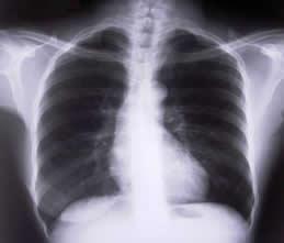 asbestos-xray-lungs